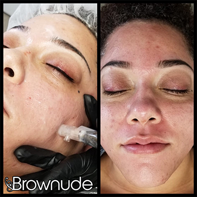 Brownude face changes